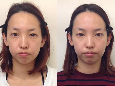 京都の整体顔矯正の画像